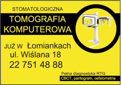 Stomatologiczna Tomografia Komputerowa